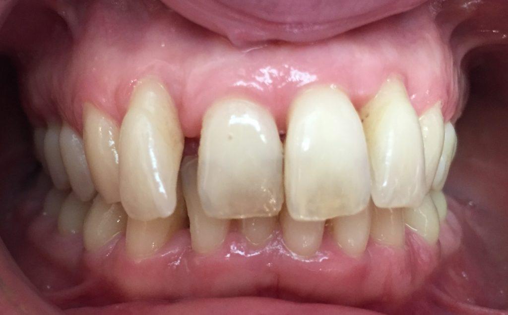 Avant le traitement orthodontique adulte