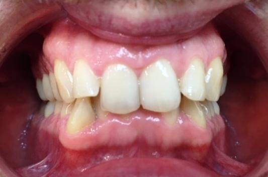 Traitement orthodontie adulte d'une supraclusion par aligneurs avant