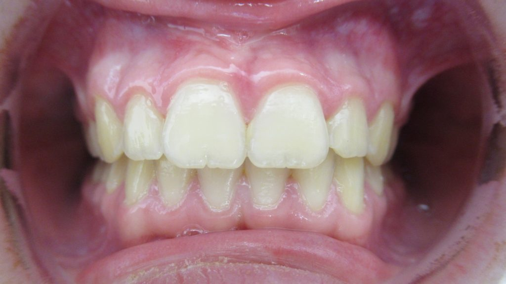 Fin Traitement Teen avec avancée mandibulaire