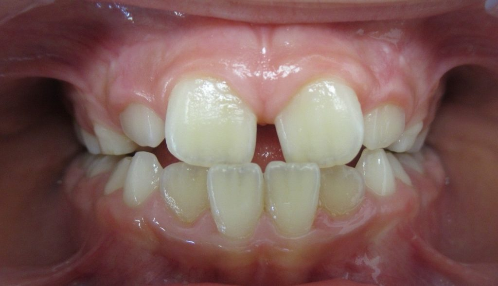 Avant orthodontie Invisalign First 6 mois d'aligneurs pour correction des axes